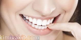 Gülüş tasarımı, Estetik diş hekimliği, diş eti
