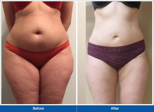 Liposuction merkezleri hakkında bilinmesi gereken önemli noktalar, Liposuction merkezlerini tanıma, Liposuction merkezi tercihinde bulunma