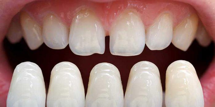 lamine diş yaptırma fiyatları, lamine dişin diğer dişlerden farkı, lamine diş nasıl yapılır