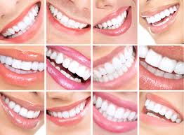 gülüş tasarımı nedir, gülüş tasarımı yapımı, gülüş tasarımı nasıl yapılır