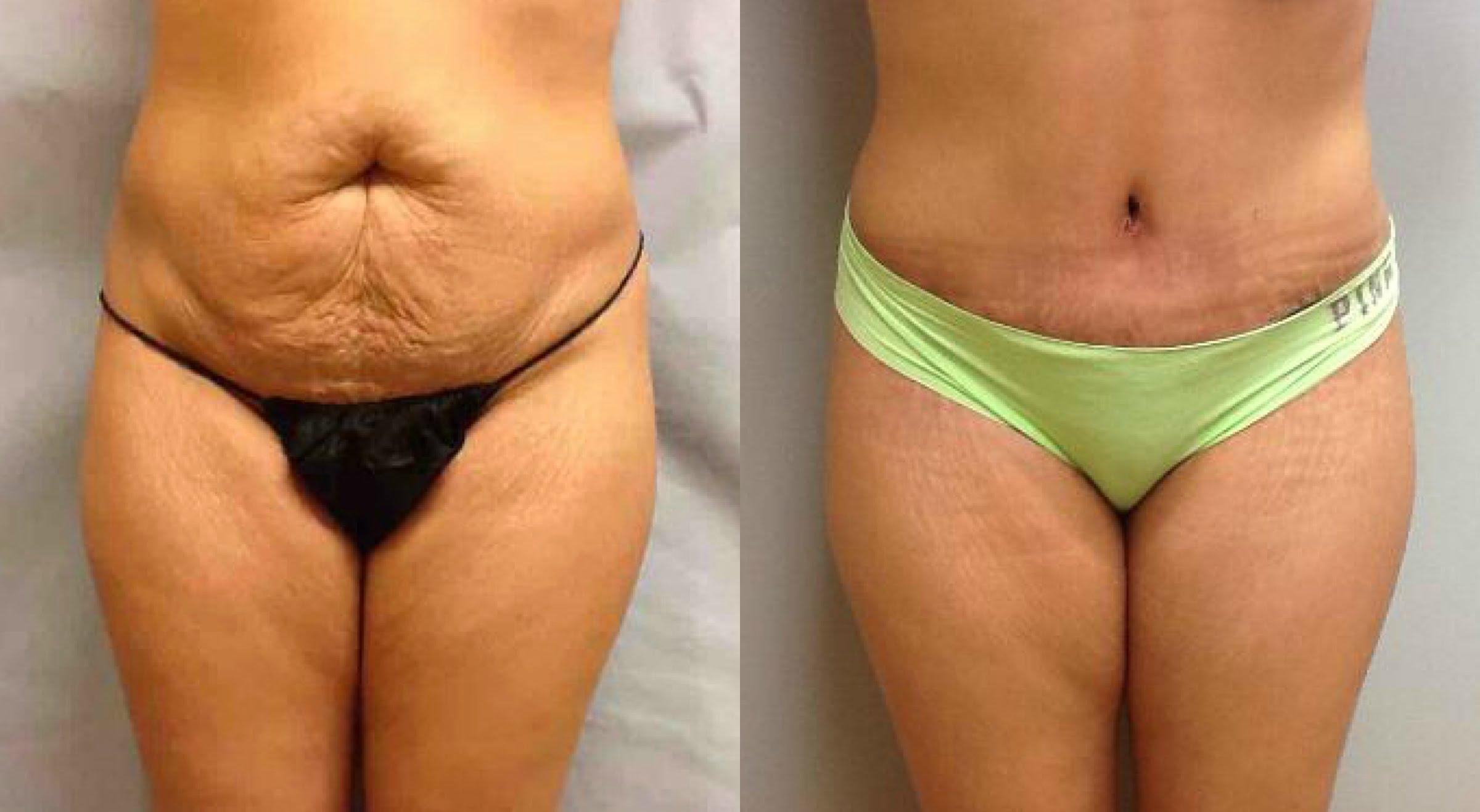 Liposuction Nedir ve Liposuction Fiyatları