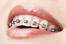 ortodonti uzmanı, ortodonti uzmanı kimdir