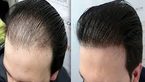 saç ekim doktoru, saç eken doktorlar