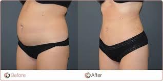 Liposuction nasıl yapılır, Liposuction nasıl uygulanır, Liposuction uygulaması yapımı sonrası