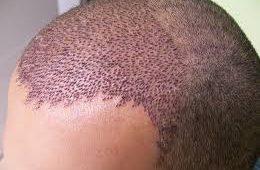 saç ekimi, saç ekim doktoru