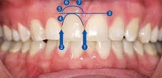 diş estetiği nasıl yapılır, diş estetiği yaptırma, diş estetiği yaptırmadan önce bilinmesi gerekenler