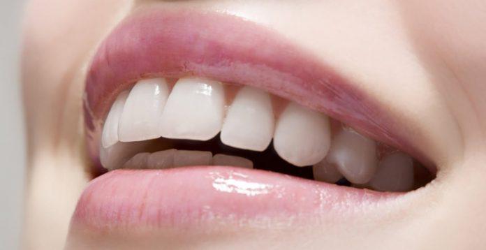 lamina diş fiyatlarını etkileyen şeyler, lamina diş fiyatları ne kadar, lamina diş yaptırma
