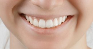 diş estetiği yapımı, diş estetiği fiyatı