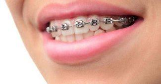 diş teli kullanımı, diş teli bakımı