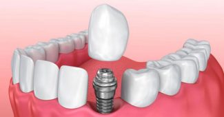 implant fiyatları, implant fiyatı nedir, implant yaptırma fiyatı