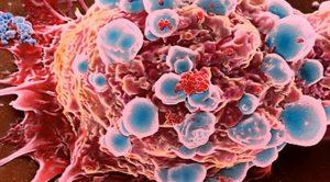 kanser hastalığı, kanser tedavisi, kanserde depresyon riski