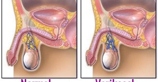 varikosel tedavisi, varikosel ameliyatı sonrası, varikosel neden olur