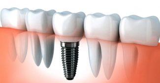 implant yapımı, implant uygulaması, implant lazerle uygulama