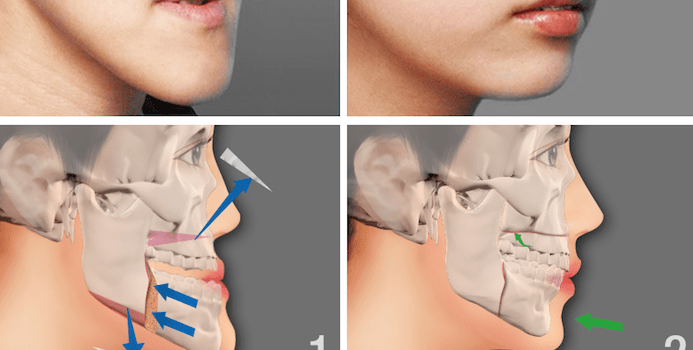 ortognatik cerrahi, çene estetiği yapımı, çene estetiği yaptırma