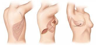 mastektomi nedir, mastektomi nasıl yapılır, mastektomi işlemi