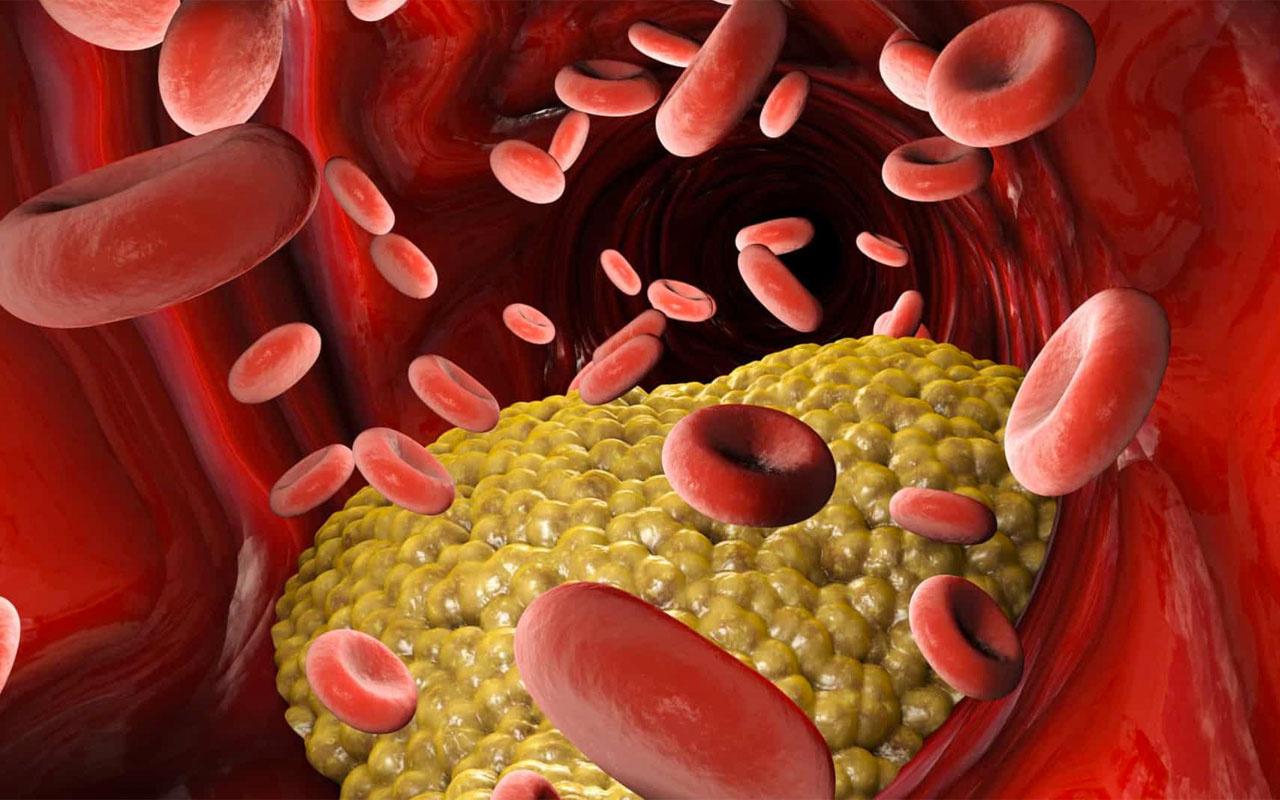 """İyi Kolesterol ve Kötü Kolesterol Farkı Nedir? Kalp hastalığı için önemli bir risk faktörü olarak kabul edilen kolesterol, ihmal edilmemesi gereken bir konu iken, medyadaki tartışmalar toplum için kafa karıştırıcıdır. Öyle ki, ilaç tedavisi gören birçok kalp ve şeker hastası medyadaki tartışmaları yanlış yorumlayarak ilaçlarını almayı bırakıyor. Bu, kardiyovasküler hastalıklardan ve hastaneye yatışlardan etkilenen insan sayısını artırdı. Bununla birlikte, kolesterol tedavisi hakkında bilinenin aksine, her hasta sayılarla değil, kendi sağlık göstergelerine göre değerlendirilir. İyi ve kötü kolesterol nedir? """"İyi kolesterolü"""" dokularda kolesterol toplayıp karaciğere ileten kamyonlar olarak tanımlayan Dr. Yangın, bu kamyonlar ne kadar büyükse dokularda o kadar az kolesterol biriktiğini, çünkü kullanılmayan kolesterolü karaciğere taşıyarak birikmeyi engellediğini söylüyor. Karaciğeri bir fabrikayla karşılaştıran ve onu kötü kolesterol kaynağı olarak gösteren Dr. Ateş, şu bilgileri veriyor: """"Karaciğer, kötü kolesterolün% 80'ini üretir. Gece uyuduğumuzda karaciğerimiz tüm malzemeleri üretmeye başlar. Ve o sırada yaptıkları malzemelerden biri de kolesteroldü. Elbette karaciğerin performansı herkes için farklıdır; Başka bir deyişle, kötü kolesterolü yüksek olan hastaların büyük çoğunluğunun maalesef sağlıklı bir karaciğeri vardır. Bu nedenle damarların daha erken yaşlanmasına bağlı olarak damar duvarında fazla üretim birikir """". Diğer kolesteroller ... Ayrıca çok düşük ağırlık denilen, ne iyi ne de kötü olan bir ara kolesterol vardır. Trigliserid olan bu kolesteroller, arterlerin sertliğini arttırdığı gibi kötü kolesterol seviyelerini de yükseltir. Tipik olarak, maksimum trigliserid seviyesi 150'dir. Ancak, bir kişinin metabolik sorunları varsa ve yağlı bir diyet yiyorsa, trigliserit seviyeleri de çok yüksektir. İyi kolesterol seviyelerini yükselten ilaçlar var mı? Henüz iyi kolesterolü yükseltecek bir ilaç yok ancak bu konuda çok ciddi araştırmalar yapılıyor. Kötü kolestero"""